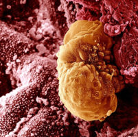 Имплантация эмбриона при ЭКО: как это происходит, ее признаки