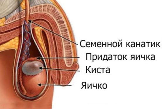 Причины бесплодия простатит курс лечения простатита в ростове