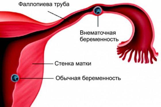 трубная