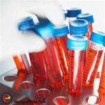 АМГ низкий – диагноз бесплодие